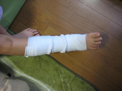 骨折2.6 (3)