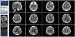 CTの画像(4×3)