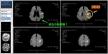 MRIの画像(2×2)