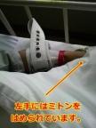 ベッドに抑制された左手