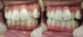 歯茎もピンクに蘇り!