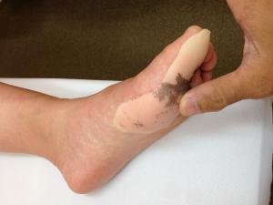 足の指の骨折親指母趾基節骨固定