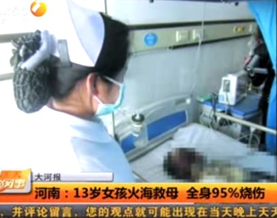 13-year-old Chinese girl suffers burns on 95