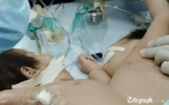 Conjoined twins separated in groundbreaking surgery