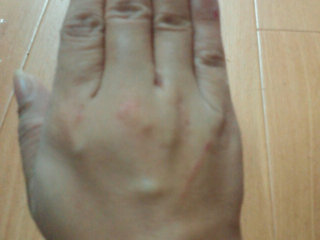 手を怪我しました