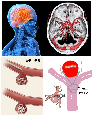 脳卒中 予防法