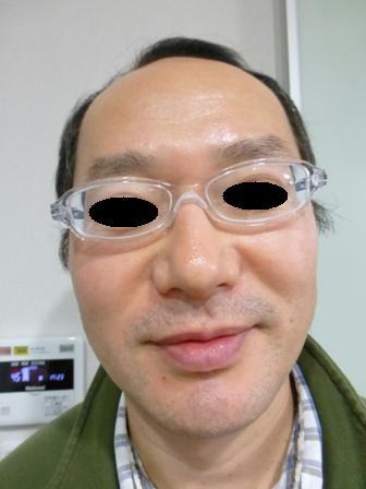 お風呂用メガネ10