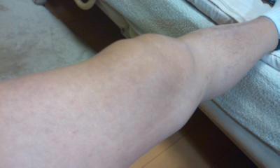 膝の腫れ1