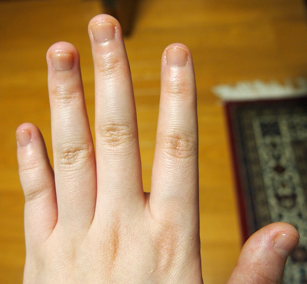 爪噛み克服 二週間経過1