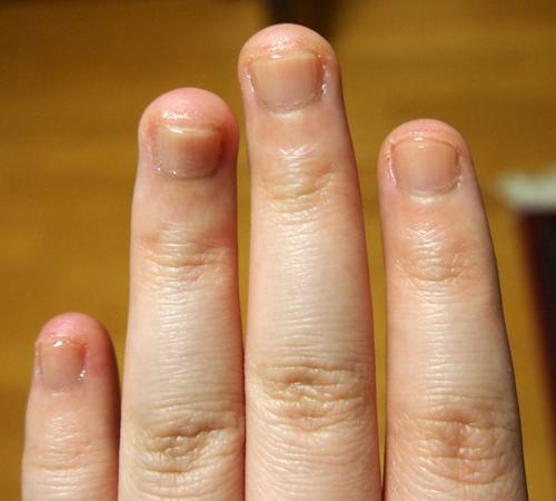 爪噛み克服 二週間経過2